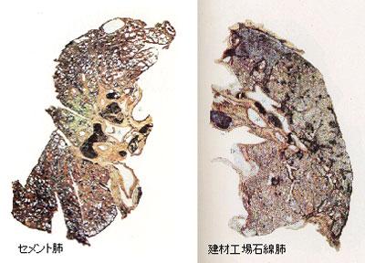 石綿関連疾患と日本の石綿 石綿(アスベスト)関連疾患と日本の石綿(アスベスト) <